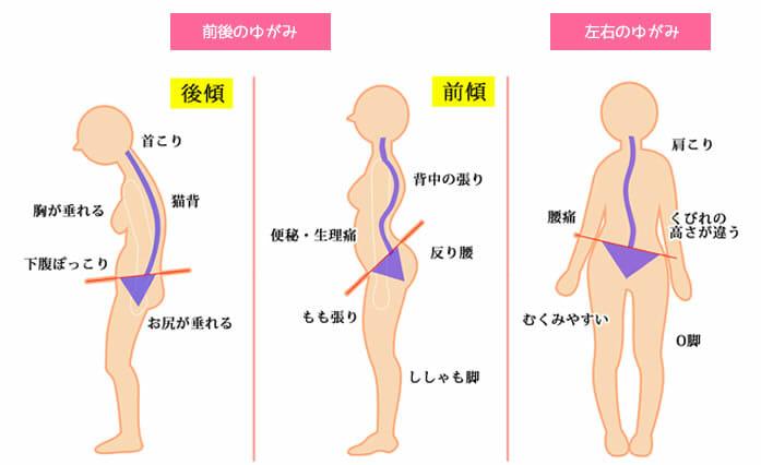 骨盤yugami