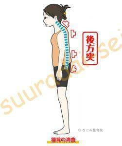 脊椎の後方凸(整骨院)